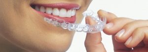A woman holding her Invisalign tray in front of her smile