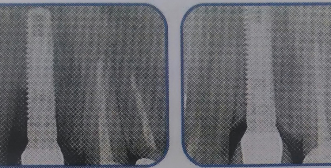 An x-ray of an implant fixture inside a jawbone