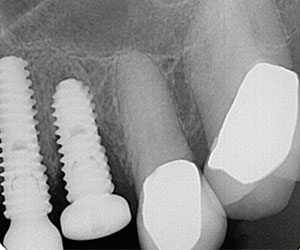 view of dental implants next to natural teeth