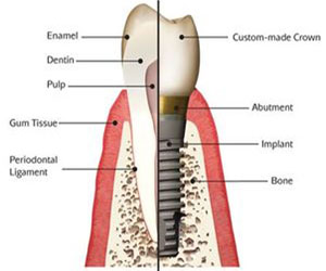 A diagram labeling the different parts of a dental implant