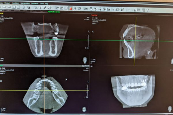 view of advanced dental scans on computer screen