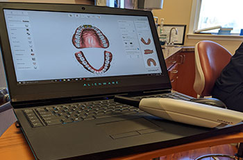 dentist's laptop with patient scans on screen