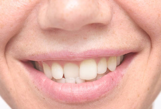 Why Straighten Your Teeth?