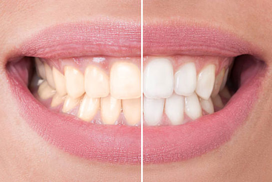 Teeth Whitening in Warminster and Philadelphia